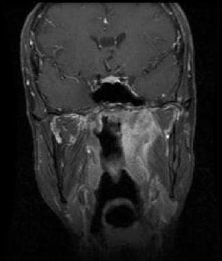 Coronal gadolinium-enhanced T1-weighted MRI shows