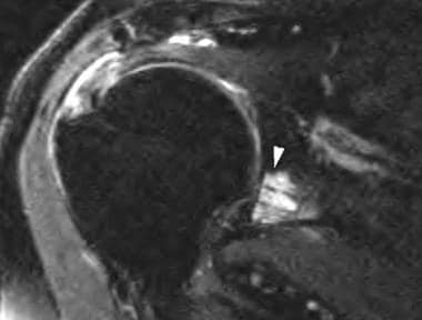 Oblique coronal T2-weighted fat-suppression image