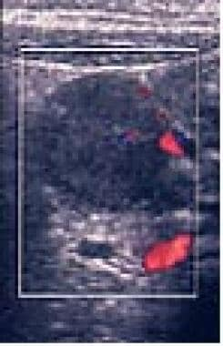Color sonogram demonstrates nodal hyperemia.