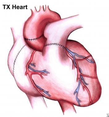 Heart transplantation technique approach considerations completed operation note suture lines on now impl ccuart Choice Image