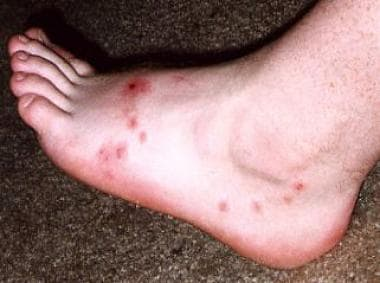 Fire ant bites on the foot.