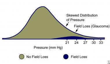 Diagram of intraocular pressure distribution, with