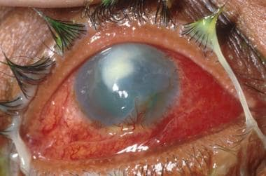 Severe chemical injury with early corneal neovascu