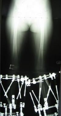 Subsequent standing hip-to-ankle anteroposterior r