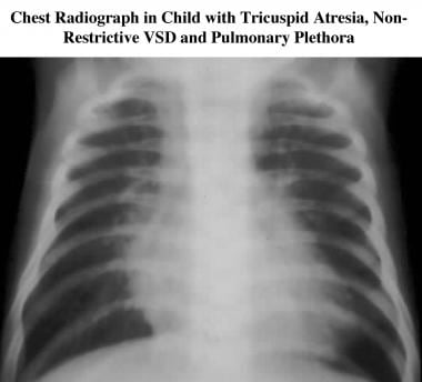 Tricuspid atresia. Frontal chest radiograph in a c
