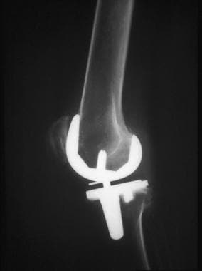 Lateral radiograph obtained after knee replacement