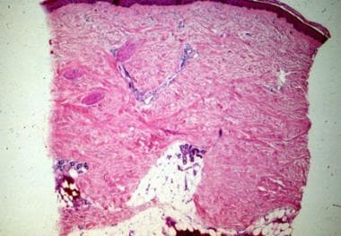 Skin biopsy showing extensive fibrosis. The biopsy