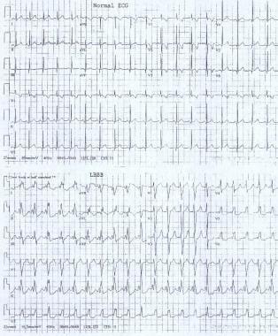 These electrocardiograms show a normal sinus rhyth