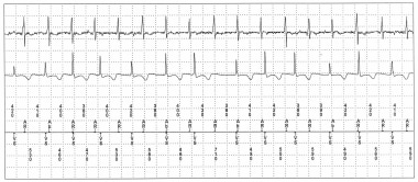 Pacemaker syndrome without pacemaker participation