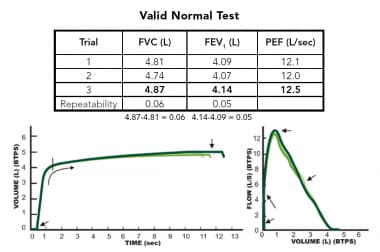 Pulmonary Function Testing: Spirometry, Lung Volume Determination