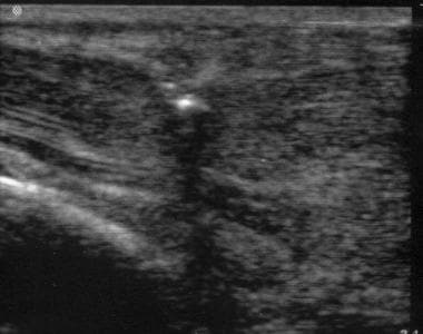 Ultrasonographic guidance (active) of retrieval of