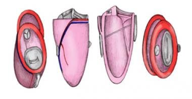 Surgical approach to mitral valve repair using ext