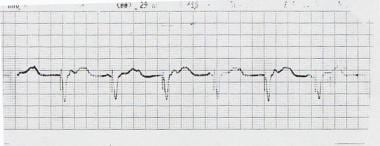 Pacemakers and Implantable Cardioverter-Defibrillators: Practice