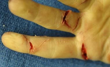 Multiple defense-type injuries on the fingers of a