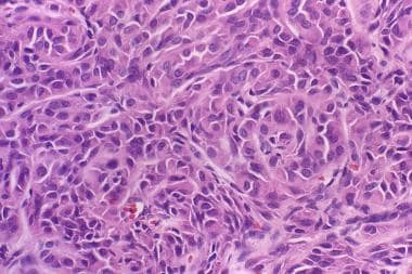 Plasmacytoid myoepithelioma. Note the plasmacytoid