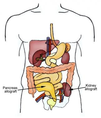 Kidney-pancreas allograft placement