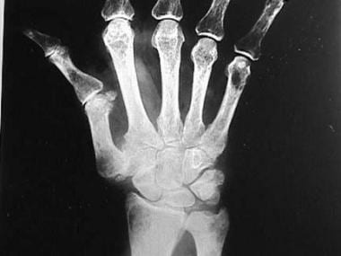 Posteroanterior radiograph of the wrist. Note the