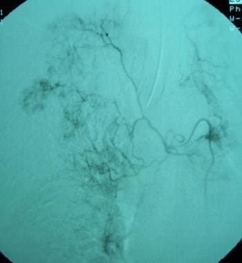 Bronchial artery embolization digital-subtraction