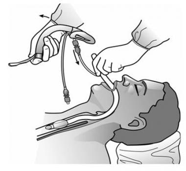 Removing the ILMA after intubation.