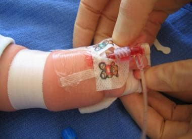 Radial artery cannulation (catheter over needle).