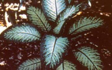 Dieffenbachia, commonly known as dumb cane