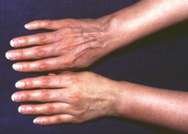 Atrophic phase of acrodermatitis chronica atrophic