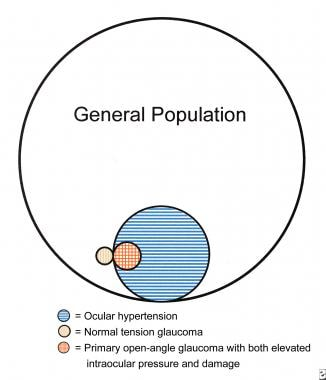 Diagram showing the relative proportion of people