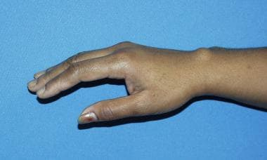 Typical appearance of dorsal ganglion cyst.