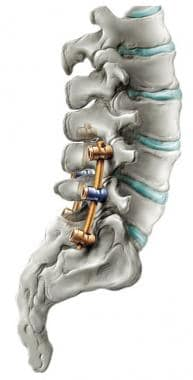 Pedicle screw fixation of lumbar spine. Image cour