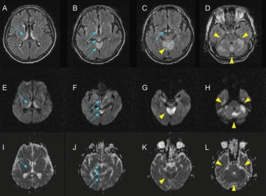 This MRI shows typical high signal intensities (SI