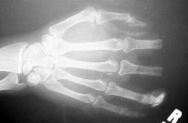 Radiologic appearance of a hand with 2-digit amput