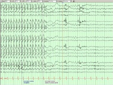 Generalized spike-wave complexes in a patient with