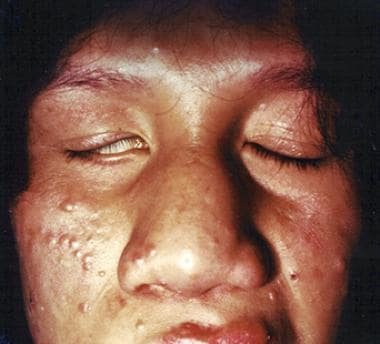 Lagophthalmos in a patient with Hansen disease.