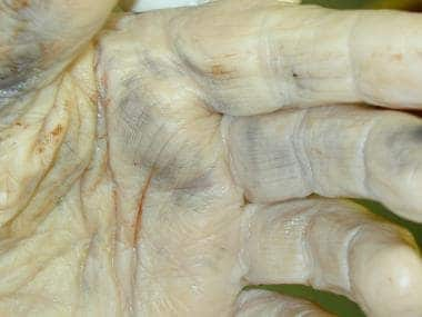 Soot on the palmar surface of a hand, likely from