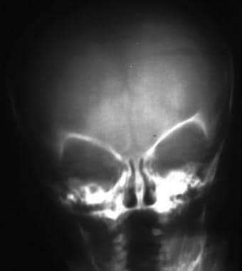 Frontal skull radiograph demonstrates a left-sided