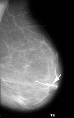 A 42-year-old woman with serous discharge from her