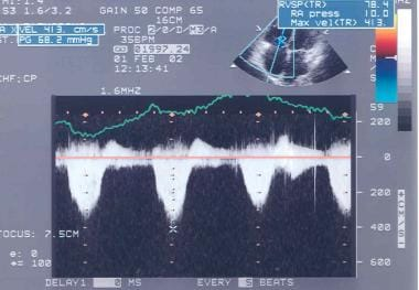 Doppler echocardiogram shows the method for measur