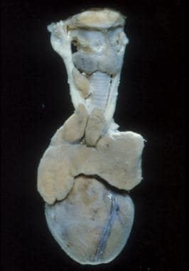 Fairly large thymus in an infant.