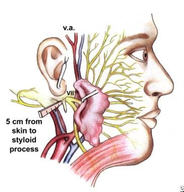 The surgical anatomy and landmarks of the facial n