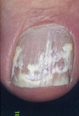 White superficial onychomycosis. Image courtesy of