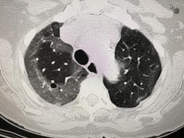 CT scan of a 79-year-old woman with proven SARS-co