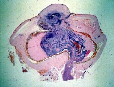 Gross photomicrograph for eye enucleated with pene