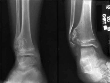 Solitary osteochondroma. Radiograph demonstrating