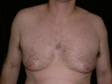 Forty-eight-year-old male gynecomastia patient wit