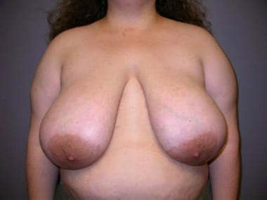 Preoperative photograph of the breasts of patient