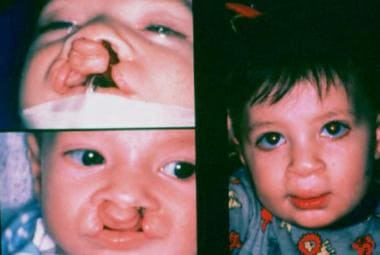 Preoperative and postoperative images of a child b