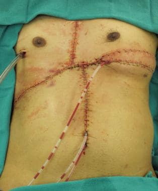 Soft tissue closure of defect with right-sided pec