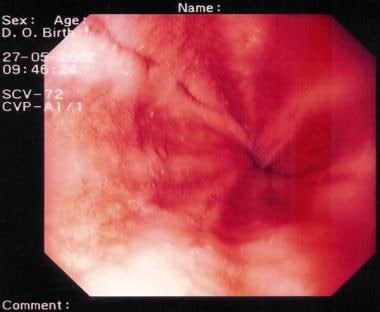 Peptic esophagitis. A rapid urease test (RUT) was