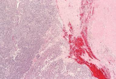 Gastrointestinal Stromal Tumors (GISTs) Workup: Laboratory Studies
