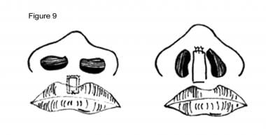 Cleft lip nasal deformity. Ferris-Smith procedure.